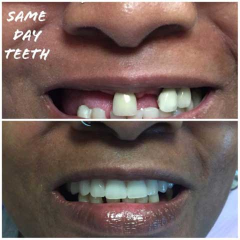 Dental-Impant-before-and-after