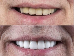 baltimore-dental-implant-complete-replacement-full-four