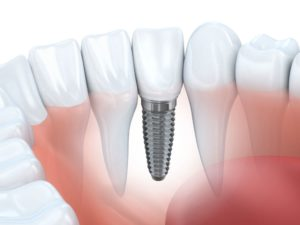 baltimore-implant-center-dental-implants-single-tooth