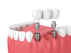 baltimore-multiple-missing-teeth-dental-implant