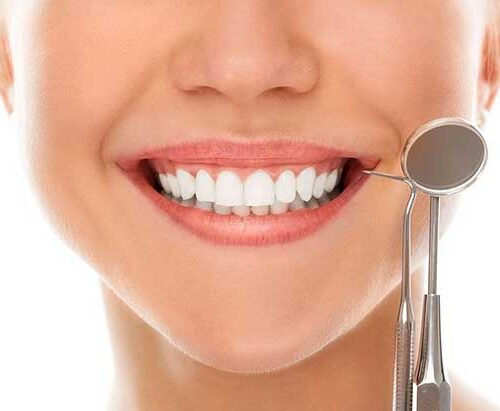 dental-implants-baltimore-implant-supported-denture