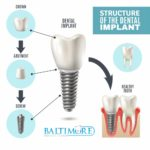 dental-implants-baltimore-md-410-implants